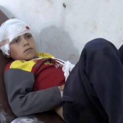 A hospitalized child is one of 50 people wounded in airstrikes on a Syrian school that some say constitute a war crime.